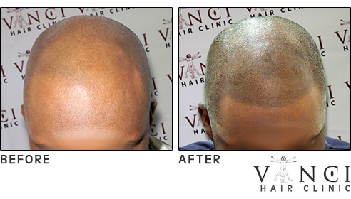 scalp-pigmentation-before-and-after-01